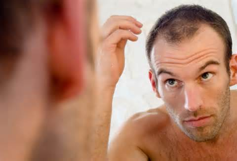 Natural Remedies to Hair Loss