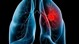 Brief Information About Lung Cancer